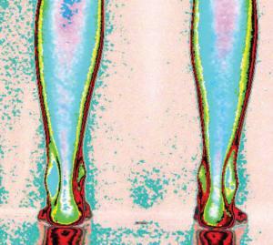 pieds après traitements podiatriques
