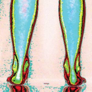 pieds avant traitement podiatrique